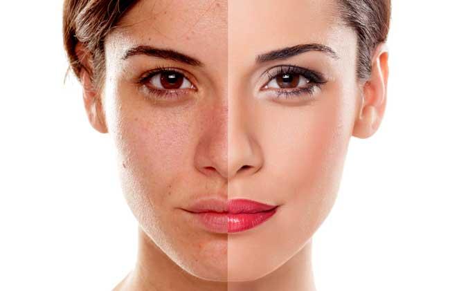 Collagena Lumiskin pret - cât costă, și de unde se poate cumpăra